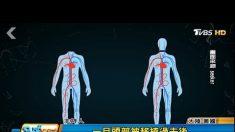 イタリア人医師と中国が人体頭部移植に初成功で非難殺到