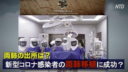 中国で新型コロナウイルス感染者の両肺移植に成功? ネットユーザー「肺はどこから?」