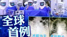 中国で初の新型コロナウイルス患者の肺移植 臓器の出どころは?