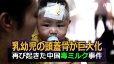 乳幼児の頭蓋骨が巨大化 再び起きた中国毒ミルク事件