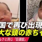 中国で再び「巨大な頭の赤ちゃん」出現 生後6か月の女児が巨頭症に